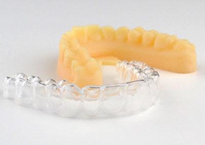 Impresion 3D Odontología